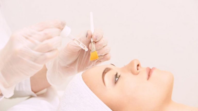 chemical peel in bergen county and fair lawn new jersey