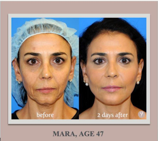y lift treatment in new jersey