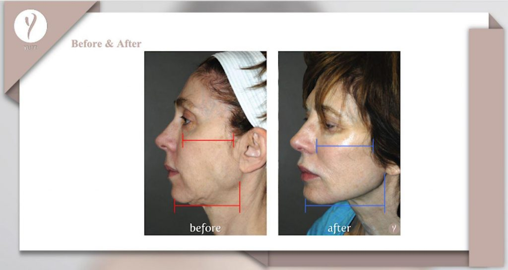 y lift treatment in lasting impression in new jersey