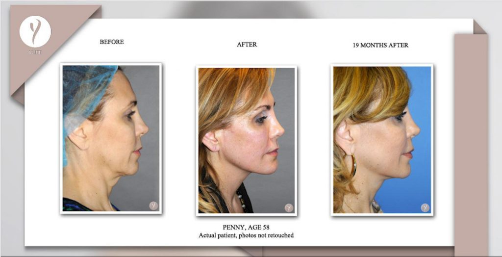 y lift treatment in medical spa new jersey