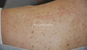 benign pigmented lesions evo light series new jersey