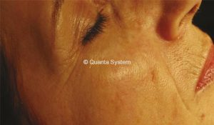 wrinkles evo light bergen county medical spa
