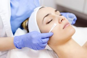 benefits to chemical peels, chemical peel, TYPES OF CHEMICAL PEELS