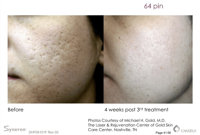 etwo sublative treatment in lasting impression in new jersey