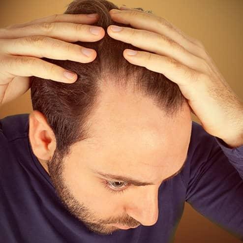 HAIR LOSS & HAIR THINNING