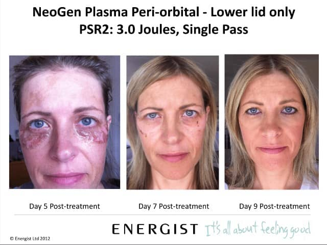 neogen plasma before after new jersey