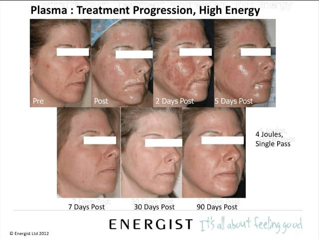 neogen plasma treatment in new jersey