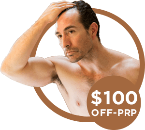 $100 off on prp treatment