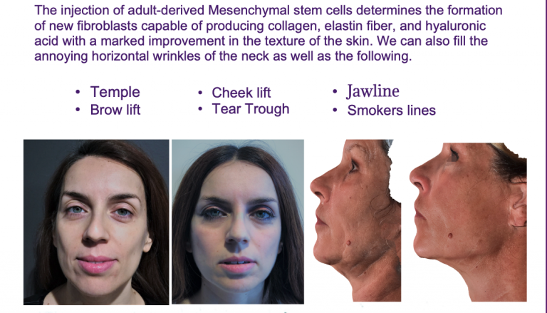 Stem Cell Facial Before and After
