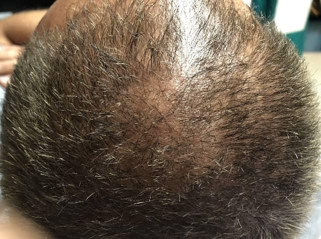 Hair Loss Treatment | Lasting Impression Medical Spa