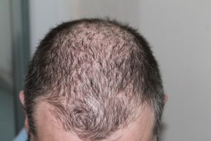 hinning Hair - Symptoms, Causes, and the Effects of Hair Loss