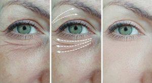 NeoGen Plasma Treatment - A Unique Skin Rejuvenation Process